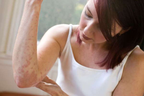 causes of hives in adults | Lifescript.com